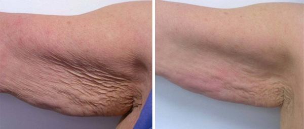 arms-skin-tightening-before-and-after