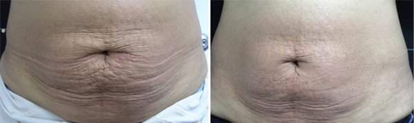 belly-skin-tightening-before-after