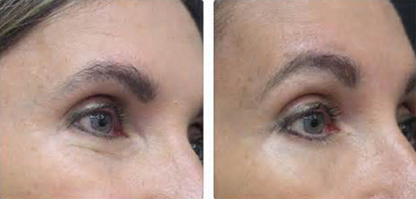 skin-tightening-eyes-before-after