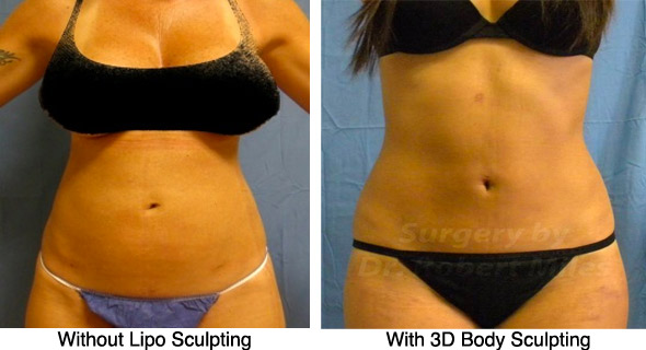 Liposuction And Liposcuplting In Orlando