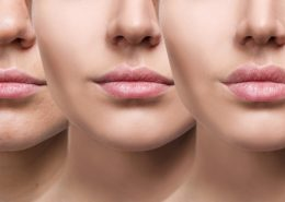 Medical Grade Chemical Peels | Exfoliating Peels & Treatments