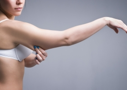 What Can Arm Liposuction Do for You?